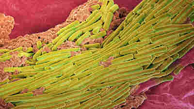 C. difficile bacteria, shown in yellow, are common in hospitals and nursing homes, and very difficult to treat.
