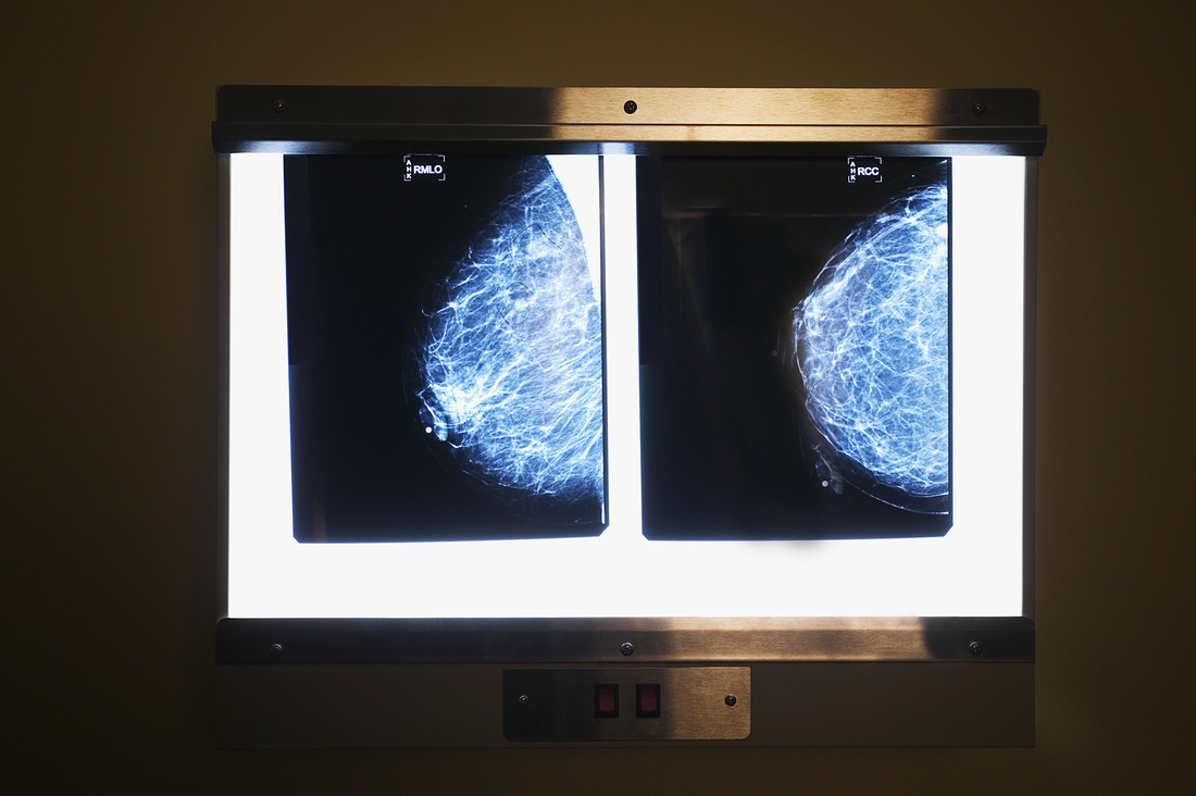 Image Result For Affordable Care Act Mammogram Coverage