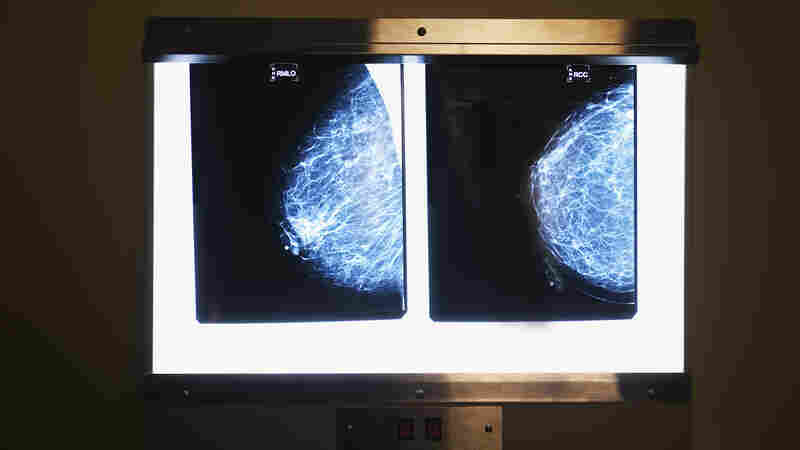 A change in mammography guidelines could affect their cost for many women.