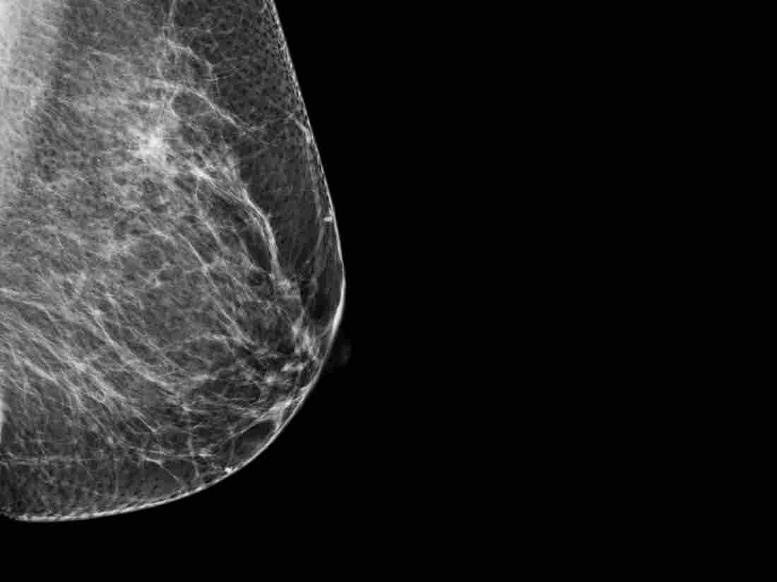 Dense breast tissue shows up as white on X-rays, making it harder to spot cancers, which are also white.