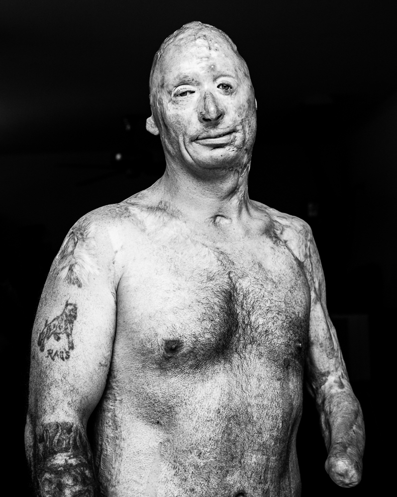 It's Not Rude: These Portraits Of Wounded Vets Are Meant To Be Stared At
