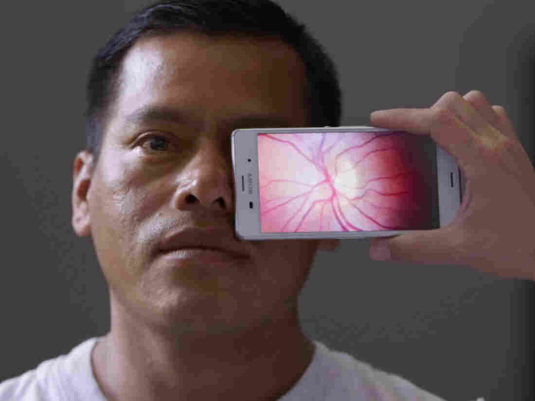 A new smartphone app gives a close-up view of a patient's eye.