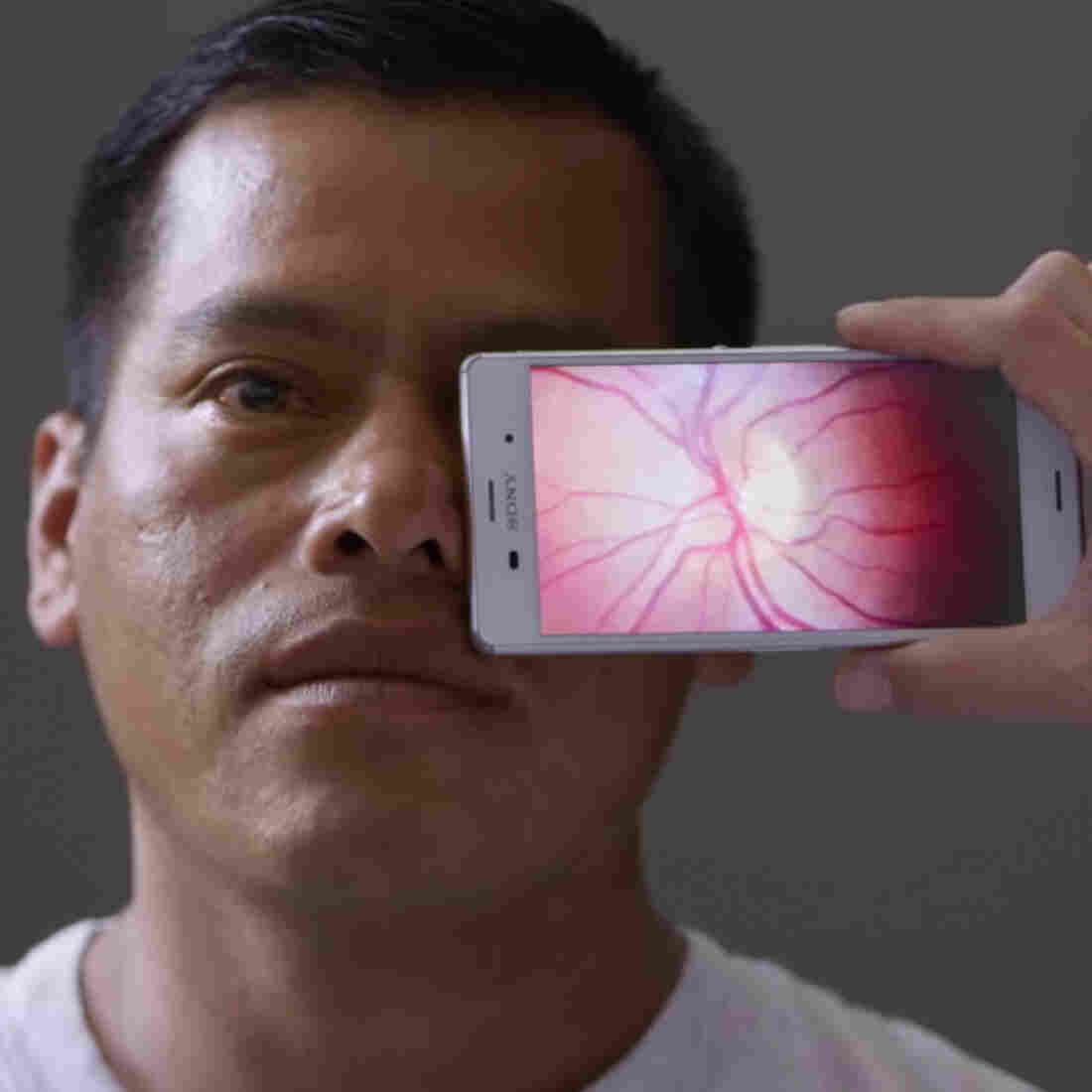 Smartphones Are So Smart They Can Now Test Your Vision