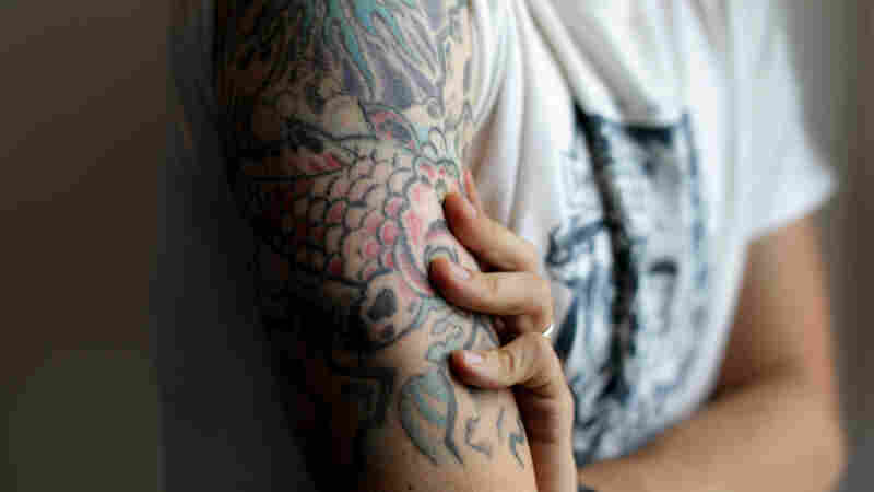 A tattoo that starts as a personal statement can sometimes have medical consequences.