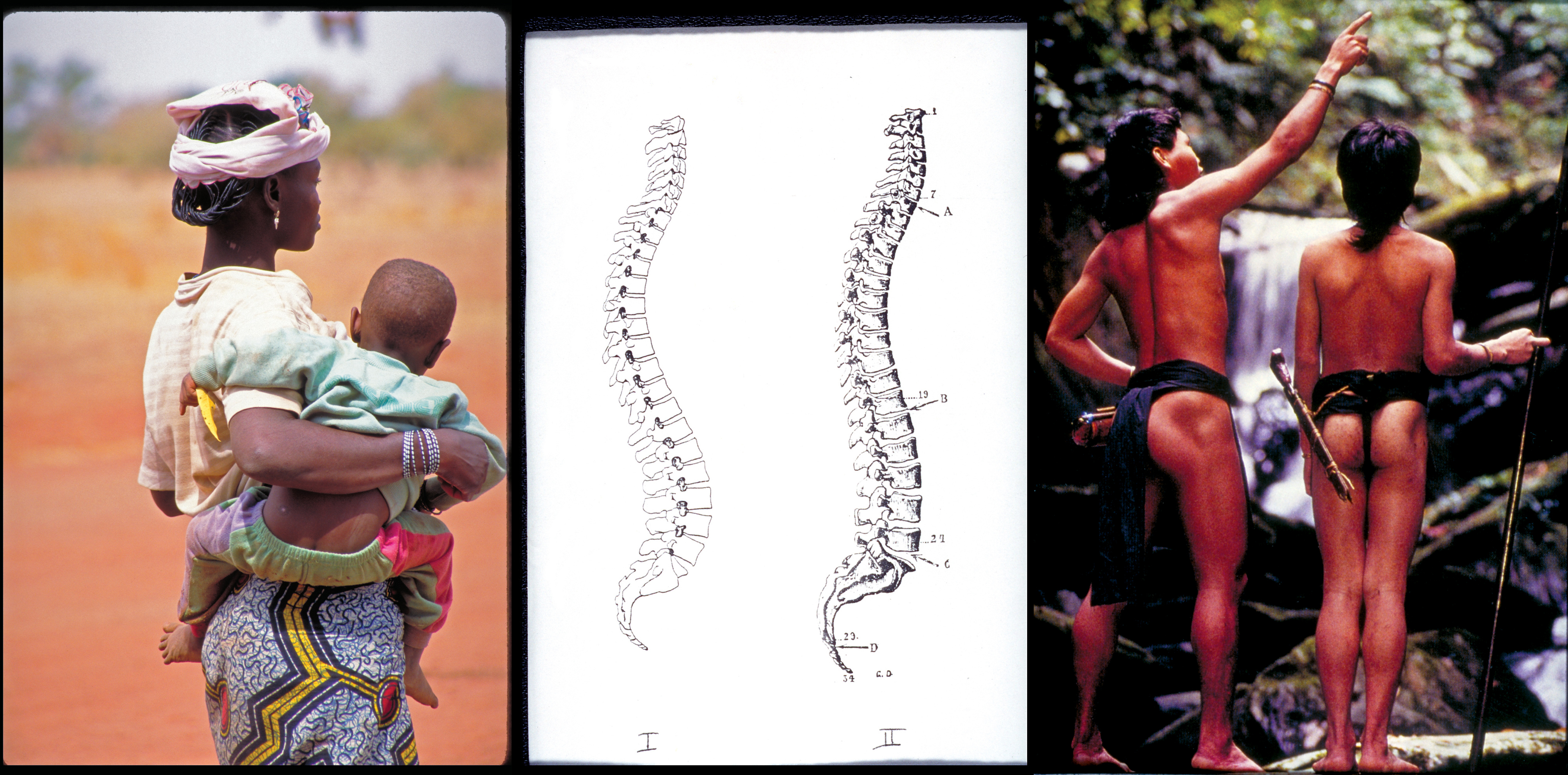 Lost Posture: Why Some Indigenous Cultures May Not Have Back Pain