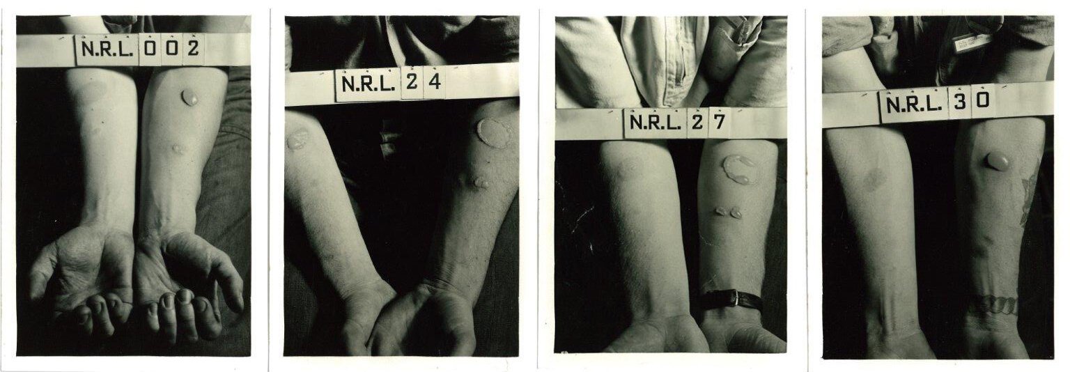 These Historical Photographs Depict The Forearms Of Human Test Subjects  After Being Exposed To Nitrogen Mustard