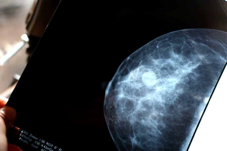 Image Gallery stage 5 mammogram
