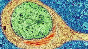 """In this colorized image of a brain cell from a person with Alzheimer's, the red tangle in the yellow cell body is a toxic tangle of misfolded """"tau"""" proteins, adjacent to the cell's green nucleus."""