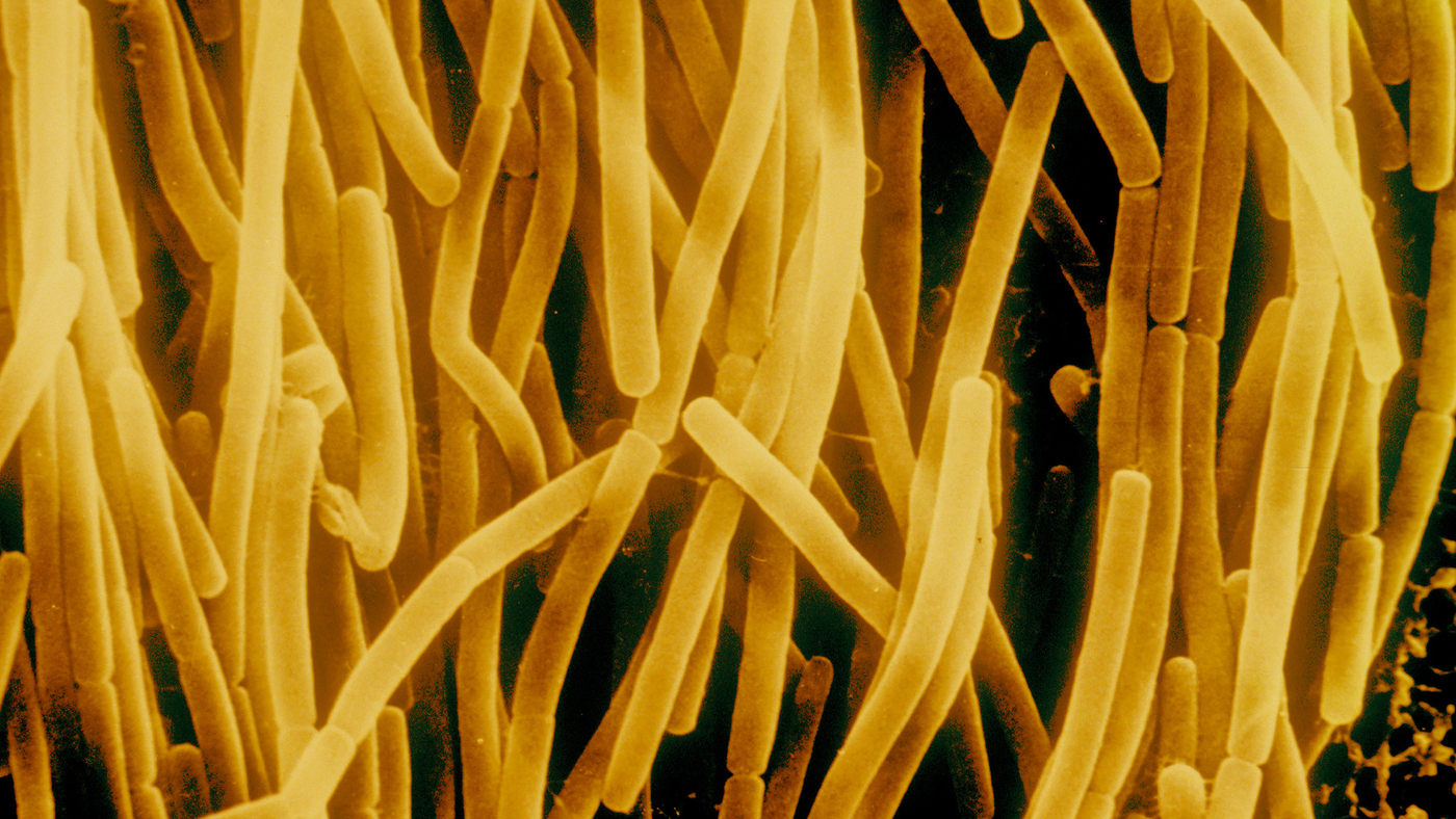 Does This Phylum Make Me Look Fat? : Shots - Health News : NPR