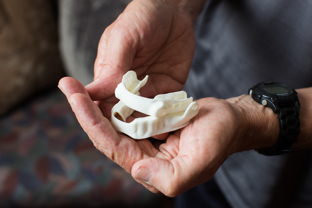 Instead of relying on forced air to keep his airway open when he sleeps, Arnott now wears this soft oral appliance at night. The device is more comfortable than CPAP, he says, and has decreased his apnea symptoms to