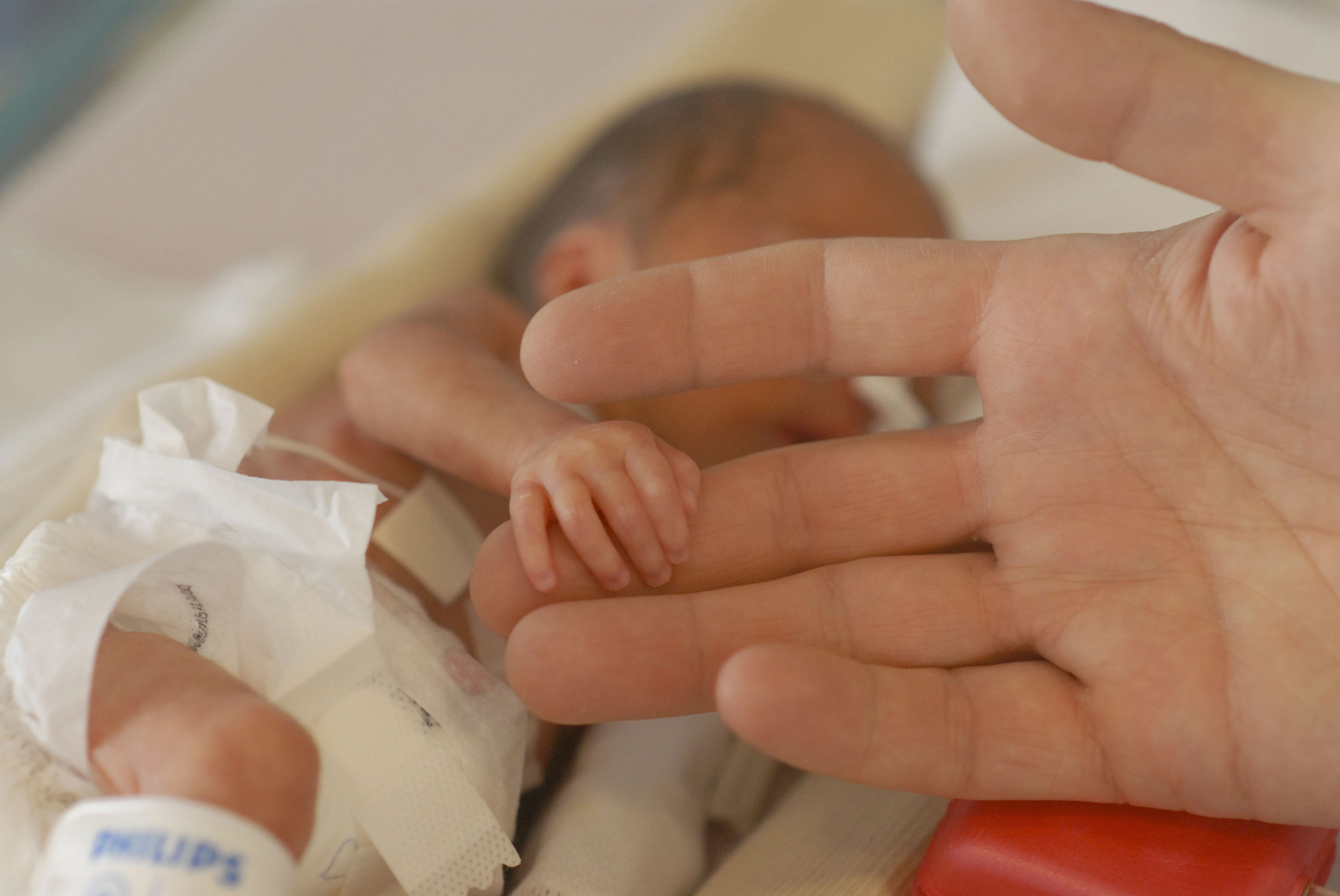 Preemies' Survival Rates Improve, But Many Challenges Remain