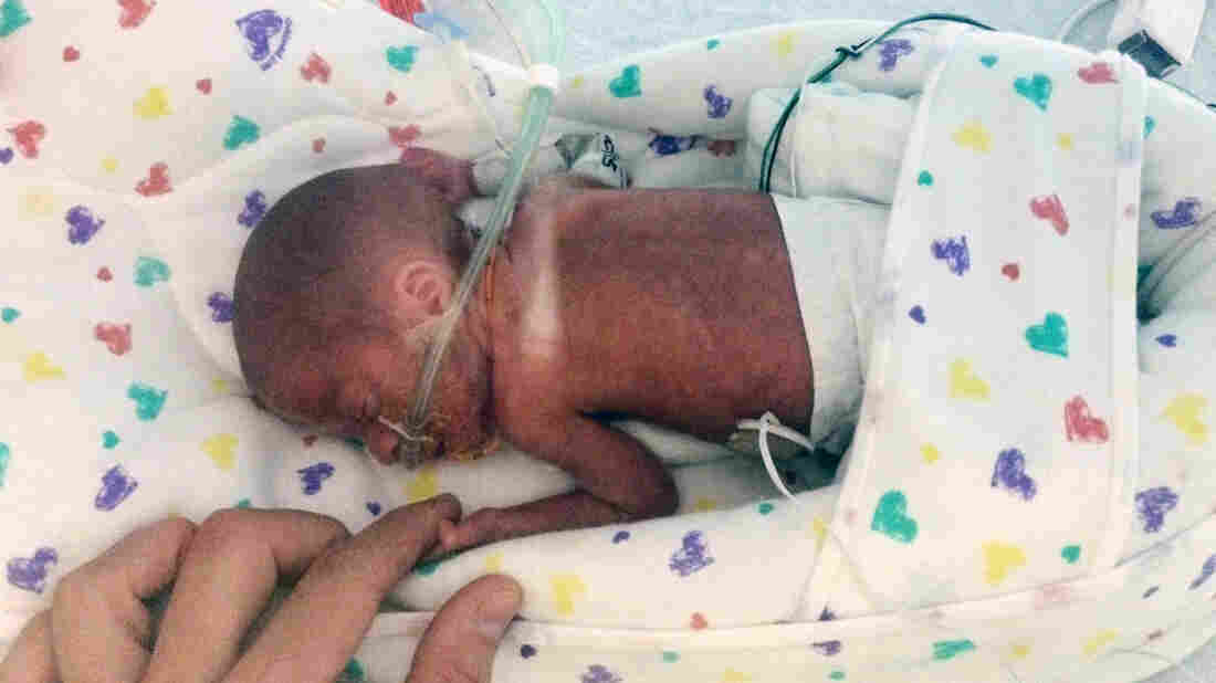In this Sept. 11 photo provided by Emily Morgan, Chase Morgan holds his son Haiden's hand at the Miami Children's Hospital. Emily Morgan, who unexpectedly gave birth on a cruise ship months before her due date, says she wrapped towels around her boy and, with the help of medical staff, managed to keep him alive until the ship reached port.