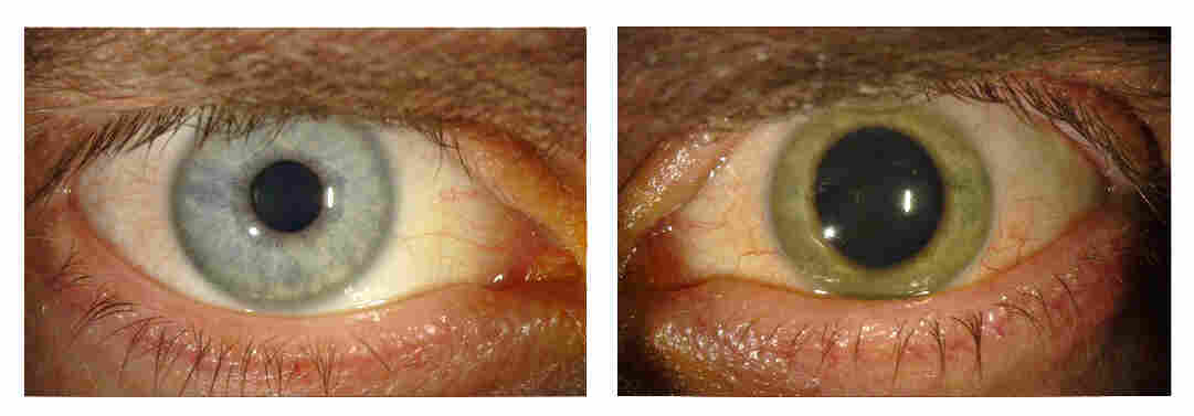 Dr. Ian Crozier survived Ebola, only to have his normally blue left eye turn green because of inflammation. Though the rest of his body was Ebola-free, his eye was teeming with the virus.