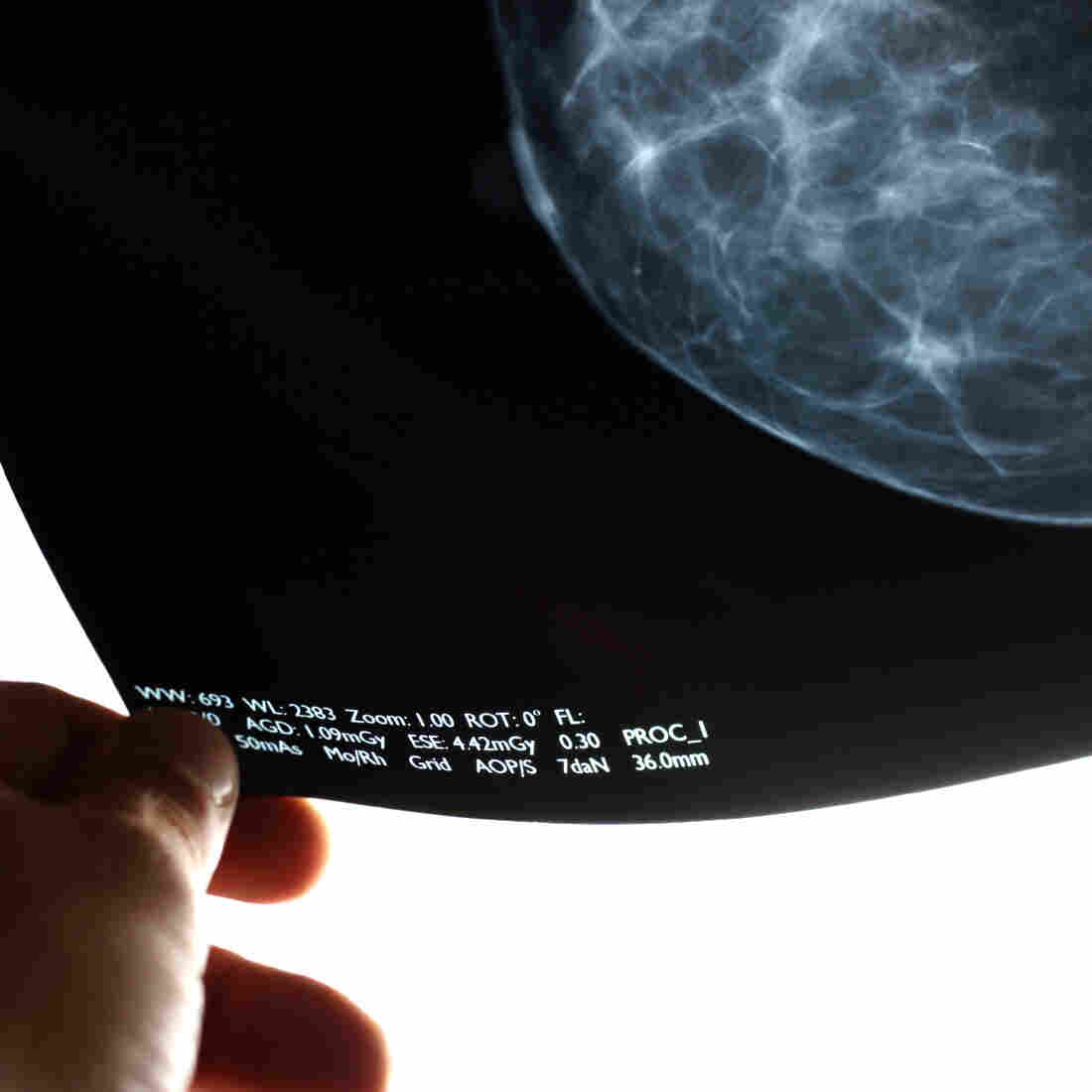 OK, When Am I Supposed To Get A Mammogram?