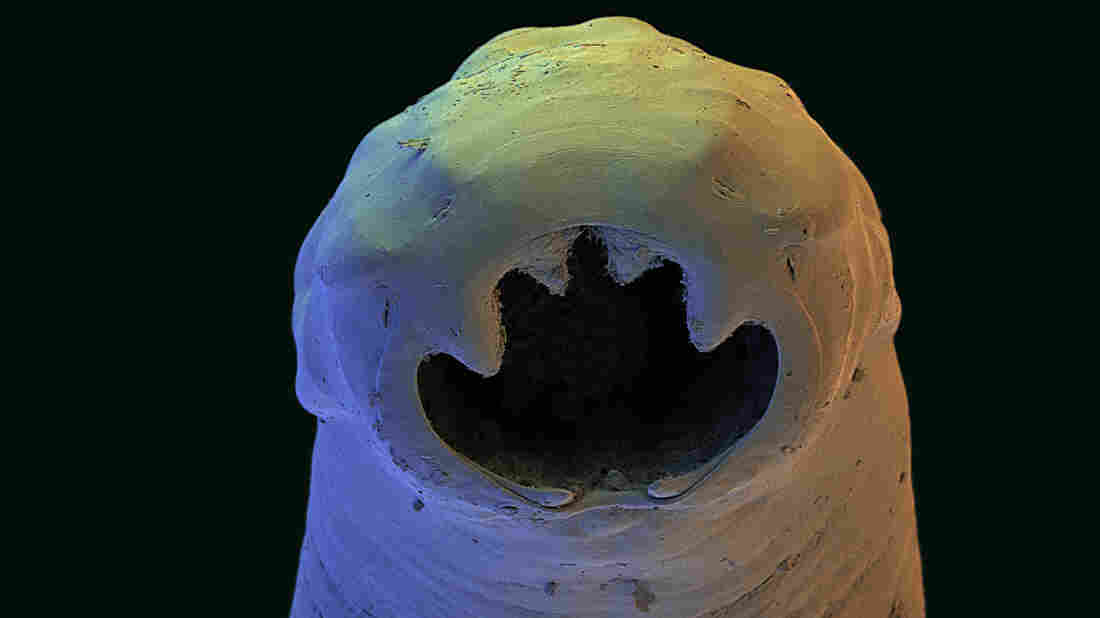 The Old World hookworm, Ancylostoma duodenale, an intestinal parasite. Adult worms feed on the human intestinal lining, leading to blood loss and anemia.