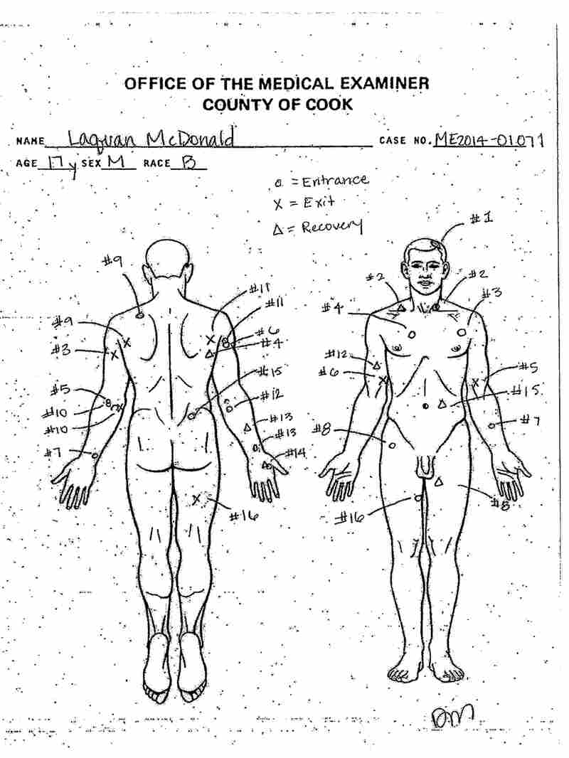 An autopsy diagram provided by the Cook County Medical Examiner's office shows the location of wounds on the body of Laquan McDonald.