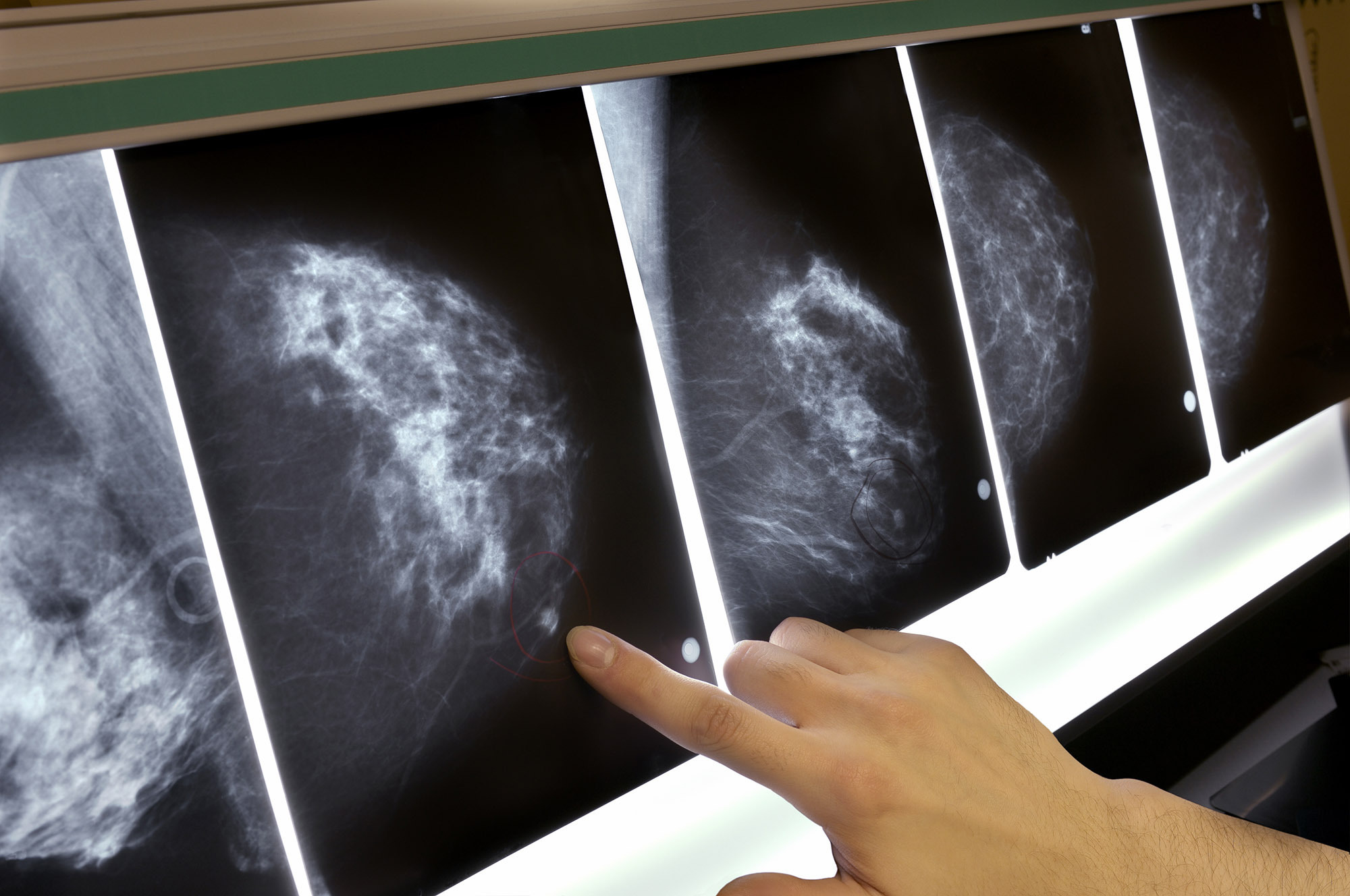False Alarm Mammograms May Still Signal Higher Breast Cancer Risk