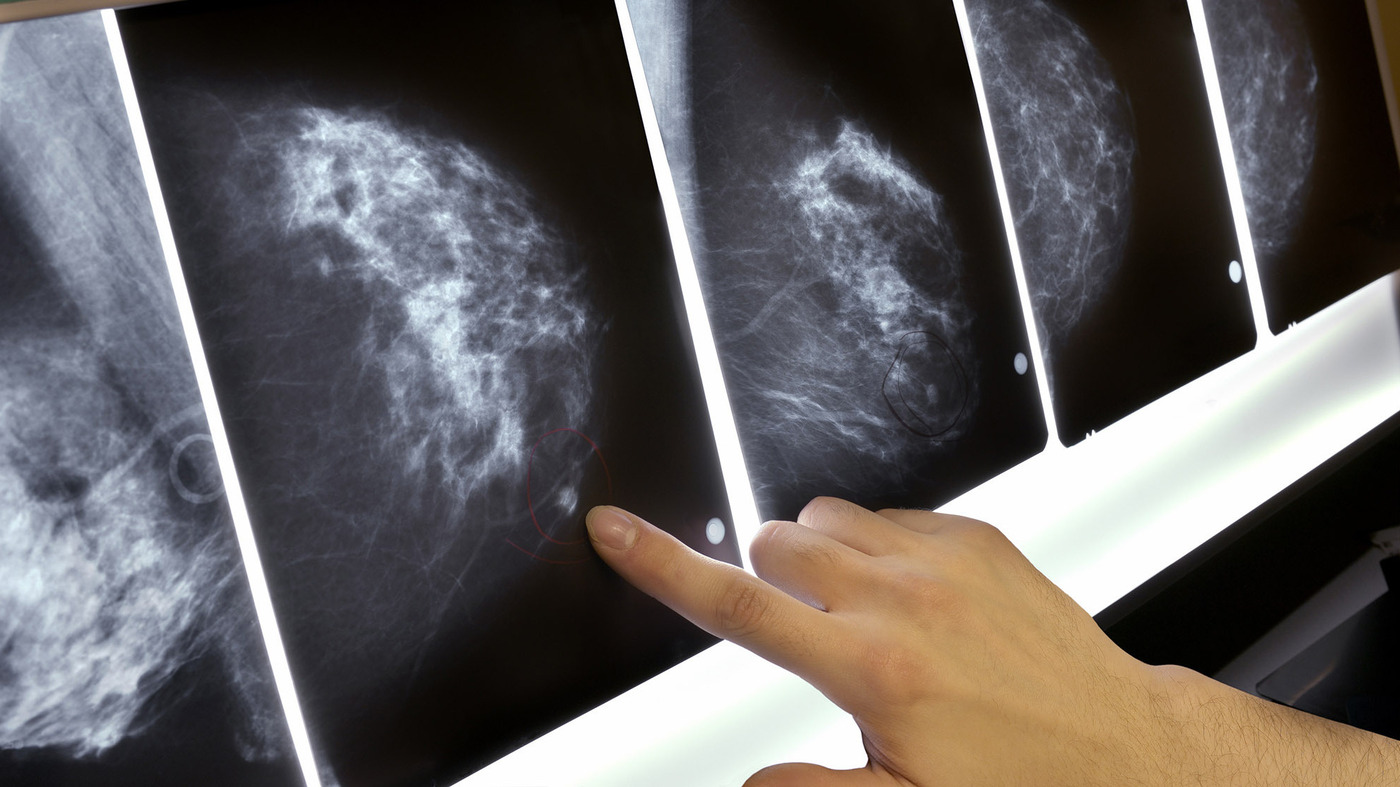False Alarm Mammograms May Still Signal Higher Breast ...