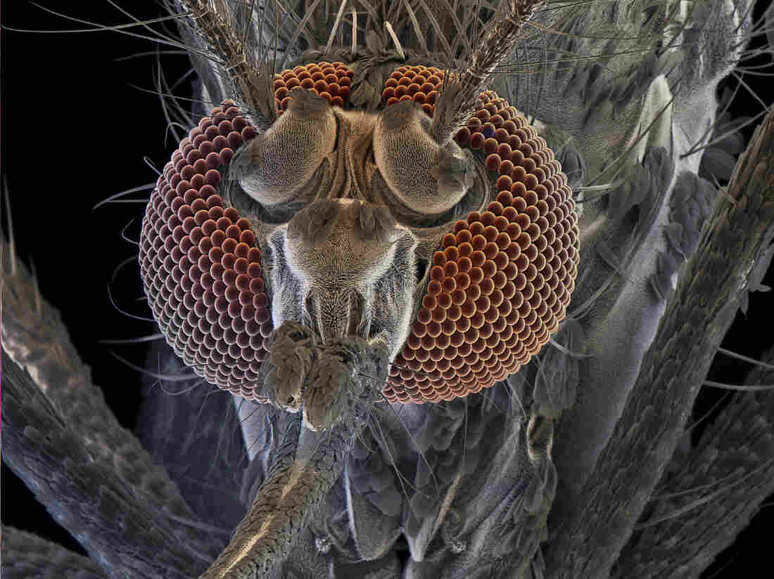 Don't bite me: The female of a mosquito called Aedes aegypti can transmit yellow fever, dengue fever and chikungunya.