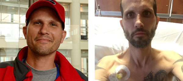 Kris Penny in April (left), and in October.