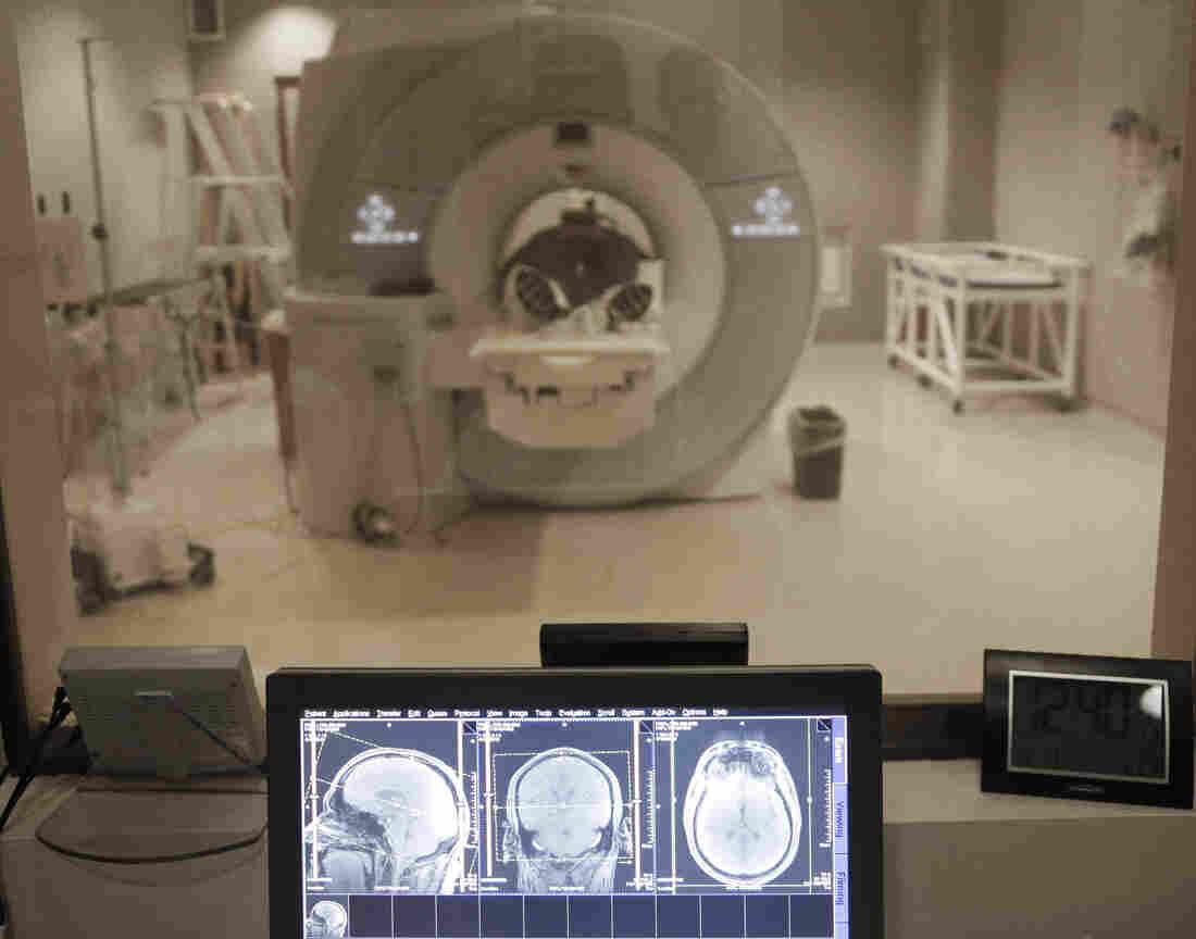 A former NFL quarterback undergoes an MRI on his brain in Detroit.