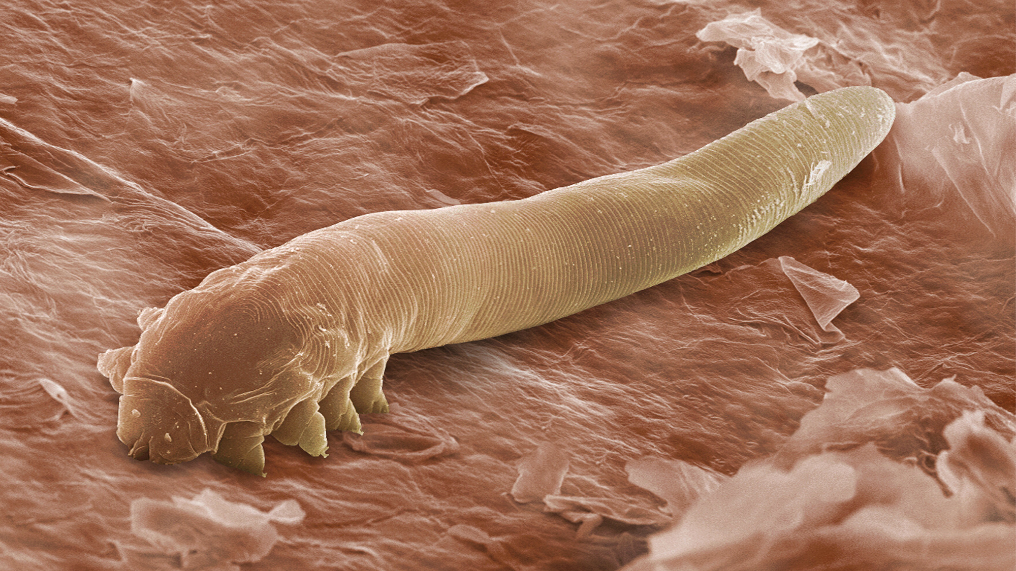 Our Parasites And Vermin Reveal Secrets Of Human History
