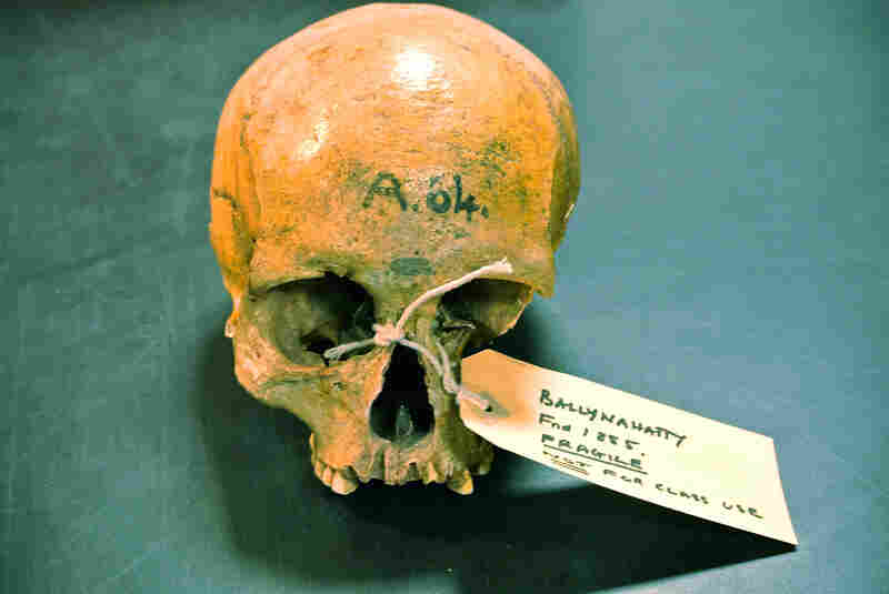The skull of Neolithic woman excavated in 1855 in Ballynahatty, Northern Ireland.