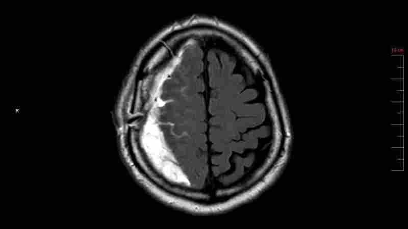 An MRI scan shows Bryan Arling's brain from above. The white-looking fluid is a subdural hematoma, or a collection of blood, that pushed part of his brain away from the skull, causing headaches and slowing his decision-making.