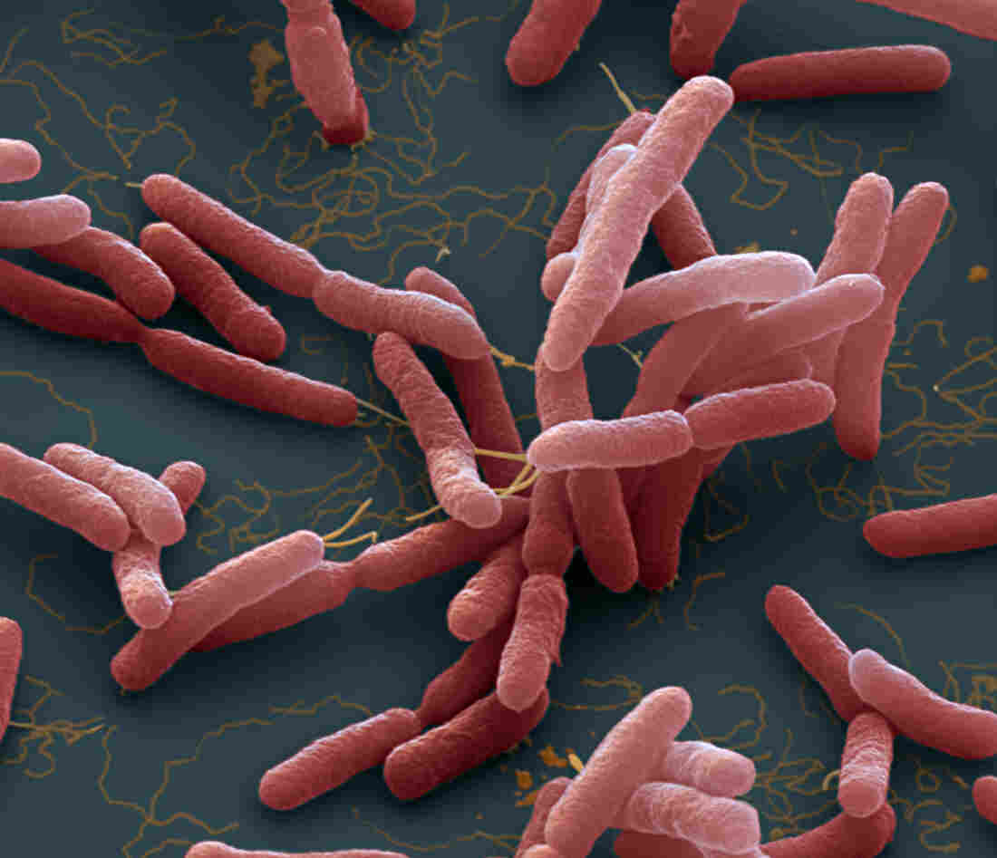 A colored enhanced scanning electron micrograph of Burkholderia pseudomallei. These motile bacteria are the cause of melioidosis, a tropical disease spread through contaminated water and soil. The bacteria can infect the skin, causing inflammation and muscle aches, or the lungs, causing chest pain, cough and in some cases pneumonia.