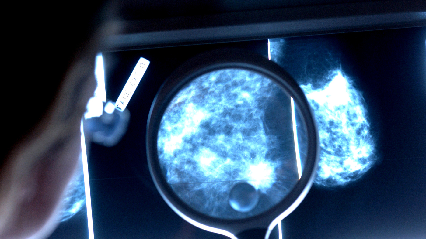 Best Car Audio >> Federal Panel Finalizes Mammogram Advice That Stirred Controversy : Shots - Health News : NPR
