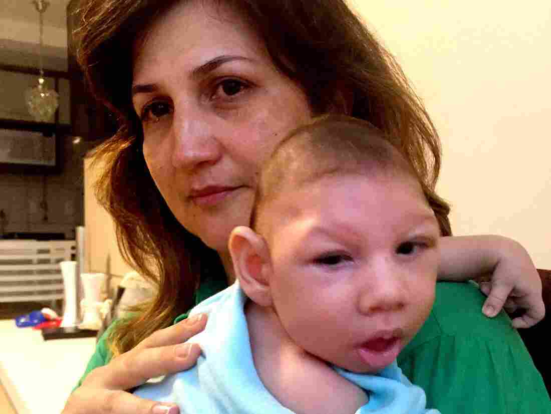 Marilla Lima had Zika virus while pregnant. Her 2 1/2-month-old son, Arthur, has microcephaly — a birth defect characterized by a small head and severe brain damage.