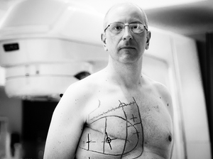 The markings on Oliver Bogler's chest are used to guide radiation therapy.