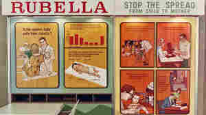 More than 20,000 babies in the U.S. were born with congenital rubella syndrome during an outbreak of rubella in 1964-65. A vaccine developed in 1969 helped curb the virus's spread but hasn't eliminated it worldwide.