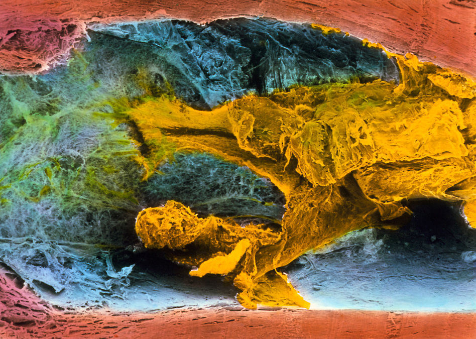 Fatty plaque (shown here in yellow) blocks about 60 percent of this coronary artery's width. The increasing thickness of artery walls is just one factor that can increase vulnerability to a heart attack or stroke. (Prof. P.M. Motta/G. Macchiarelli, S.A. Nottola/Science Source)