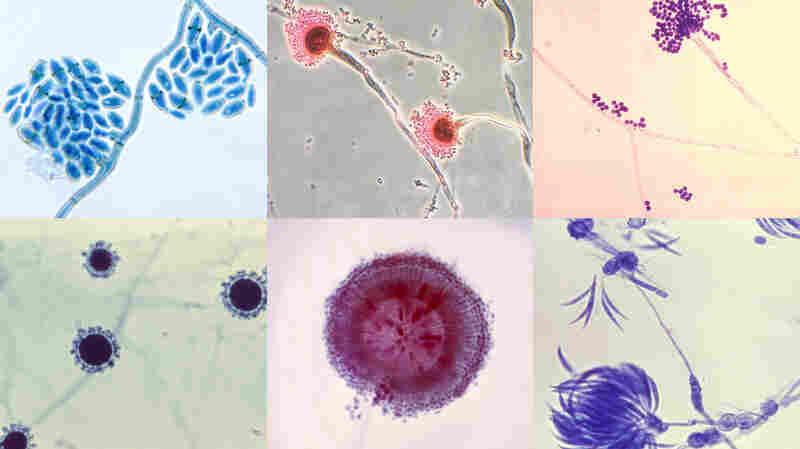 (Top left to right) Cladosporium werneckii, Aspergillus fumigates and Aspergillus fumigateurs. (Bottom left to right) Sepedonium, Aspergillus niger and Fusarium.
