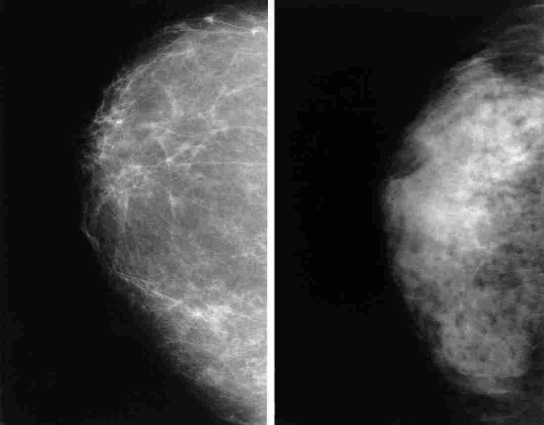 These two normal mammograms show the difference between a breast with dense tissue, left, and one that is less dense. The dense tissue reads as white, the same color as breast cancer on a mammogram.