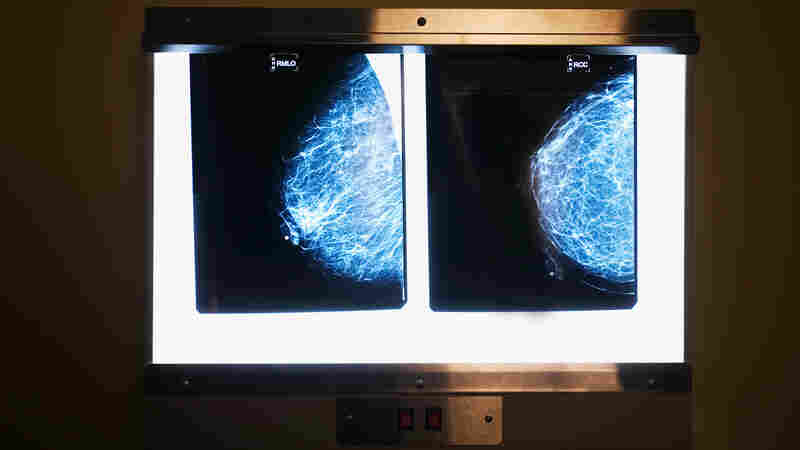 Did your mammography report come with a mention of breast density?