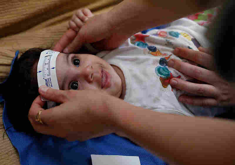 Three-month-old Esther Kamilly has her head measured by Brazilian and U.S. health workers from the United States' Centers for Disease Control and Prevention (CDC) at her home in Joao Pessoa, Brazil, Wednesday, Feb. 24, 2016, as part of a study to determine if the Zika virus is causing babies to be born with a birth defect affecting the brain.