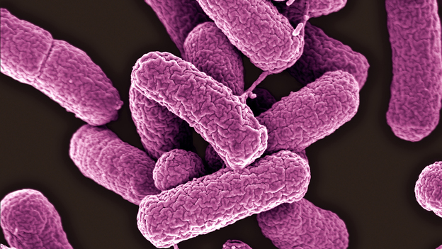 A Pennsylvania woman developed a urinary tract infection cased by Escherichia coli bacteria that were found to be resistant to colistin, an antibiotic that is seen as the last line of defense. (Science Source)