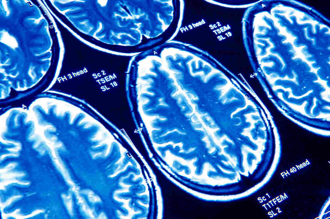 Most people who say they've had a concussion say they sought out medical care at the time.