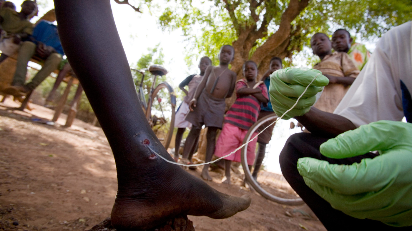 Guinea Worm Disease Could Soon Become The Second Human ...