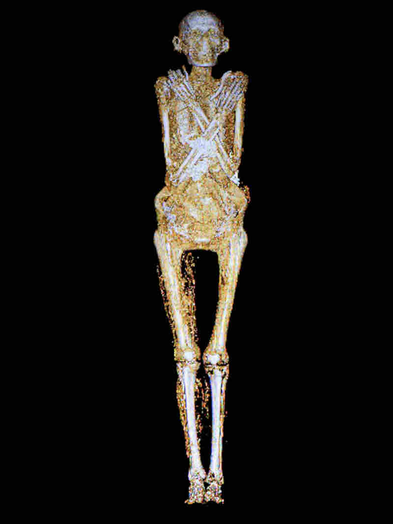 The remains of a man who lived more than two millennia ago show some of the bad effects of inactivity and poor diet.