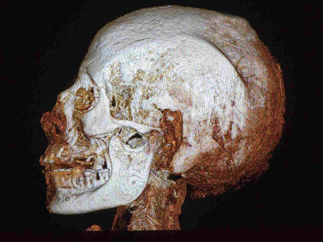 A CT scan of the skull of a 2,200-year-old Egyptian mummy on display in the Israel Museum in Jerusalem, shows osteoporosis and tooth decay, the museum said Tuesday.