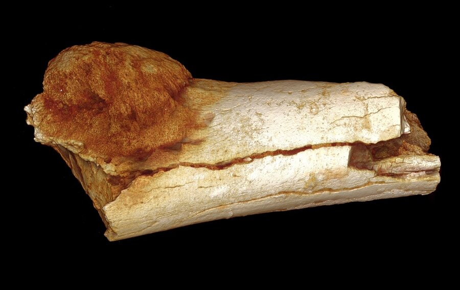 Ancient Bone Shows Evidence Of Cancer In Human Ancestor : The Two ...