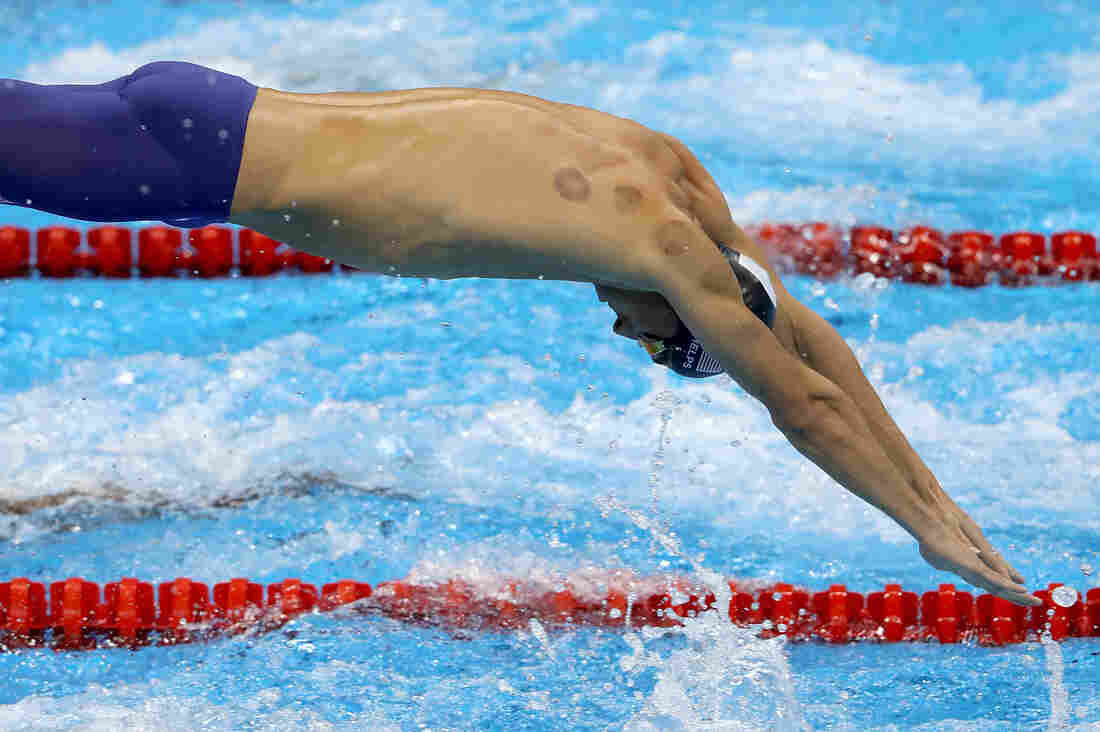 Michael Phelps shows signs of cupping on his way to another gold medal in Rio de Janeiro.