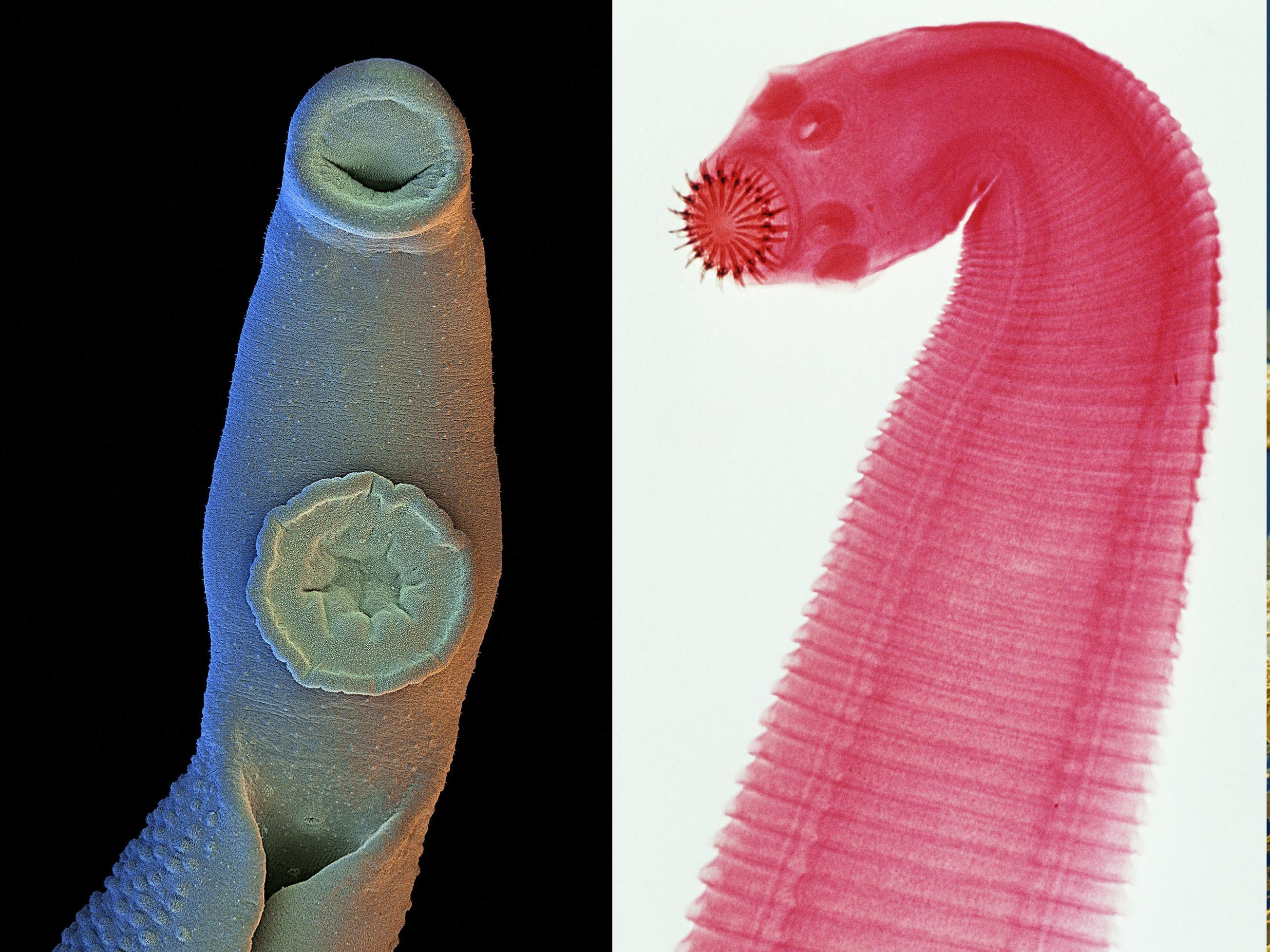 Risultati immagini per worms fluke