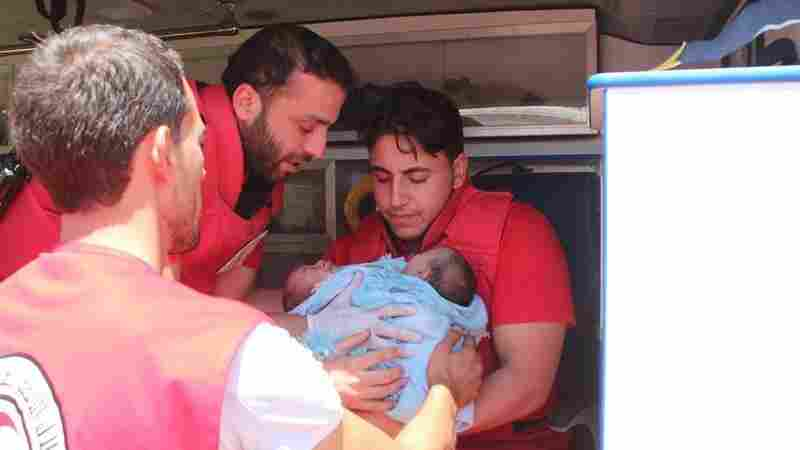 Syrian Conjoined Twins Evacuated From Embattled Rebel Stronghold