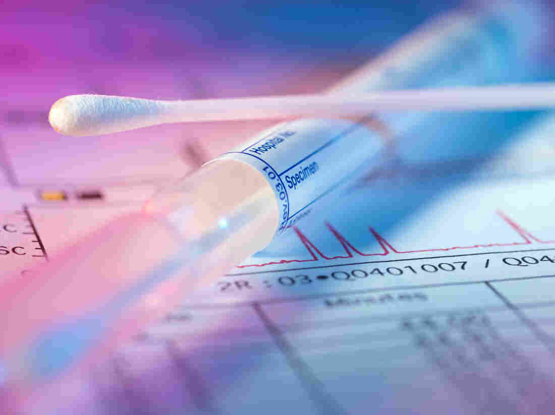 Insurers 39 fine print may exclude health care important to for Where to go for dna testing