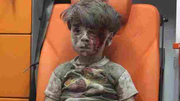 In The Face Of A Bloodied Boy, A Call To Look More Deeply At Syria