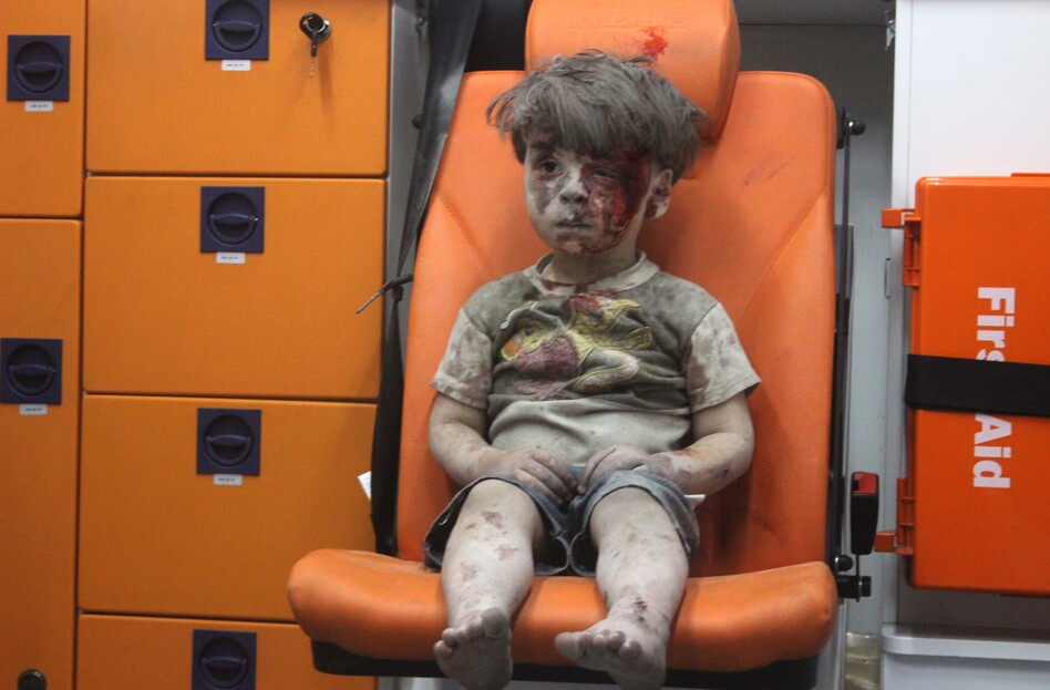 A 5-year-old boy, identified in news reports as Omran Daqneesh, sits in an ambulance Wednesday after reportedly being pulled out of a building hit by an airstrike in Aleppo, Syria. (Mahmoud Raslan/Anadolu Agency/Getty Images)